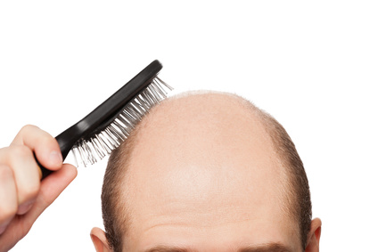 5 Most common reasons for Hair Fall- Do You Find Your Culprit here?