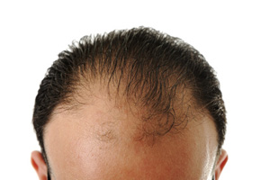 HAIR LOSS - Causes, Prevention and Treatment Options