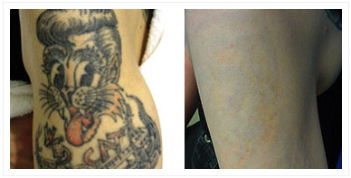 TATTOO and BIRTHMARK removal – It was never that easy!