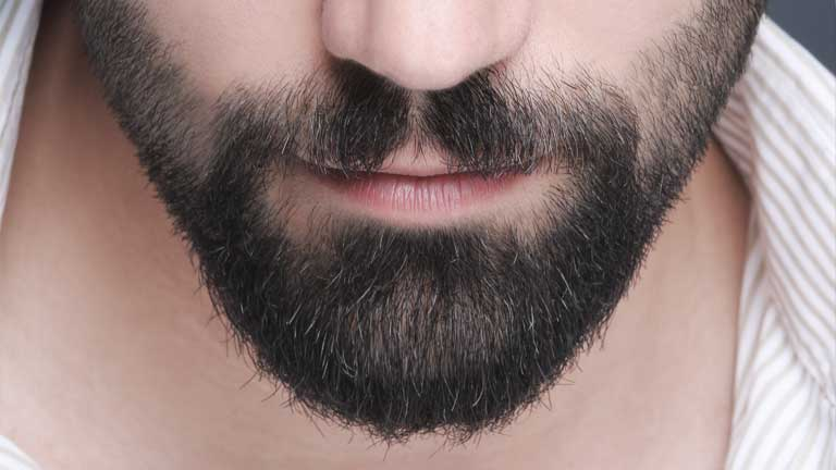 How much does a beard transplant costs?