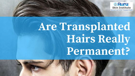 Are transplanted hairs really permanent?