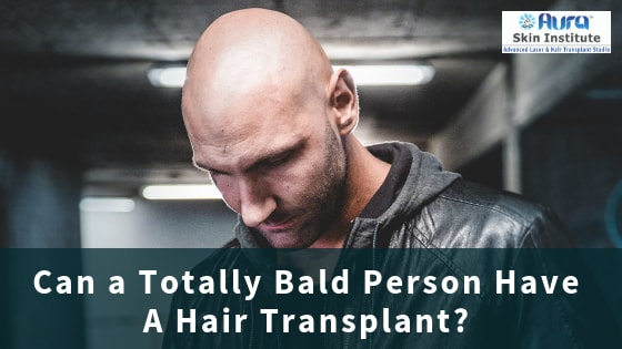 Can a Totally Bald Person Have A Hair Transplant?