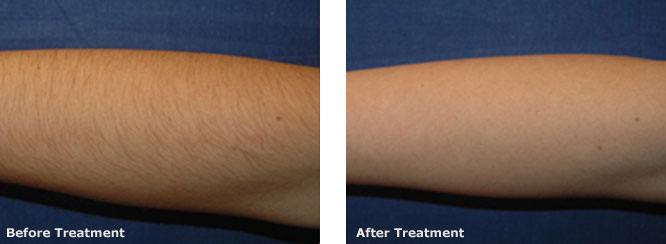 Hair Removal Forearm