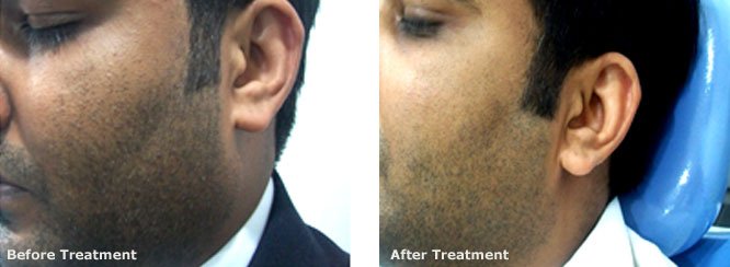 Laser hair reduction (Beard shaping)