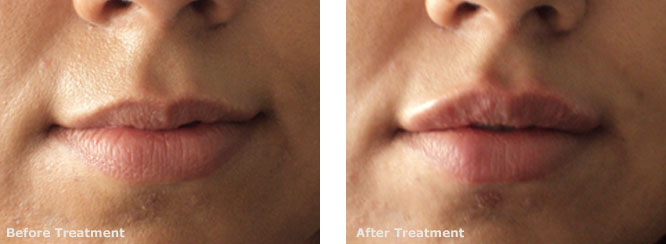Filler (Juvederm) Upper Lip