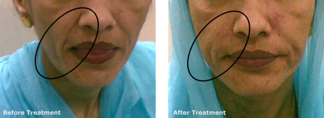 Filler Nasolabial Folds and Accordian Lines