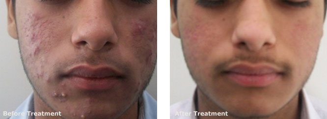 Active Acne And Post Acne Scars 3
