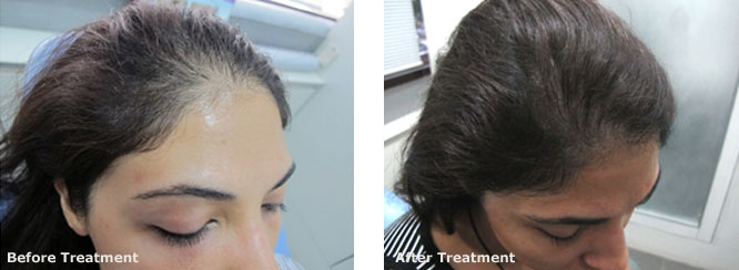 Mesotherapy for Hair Regrowth