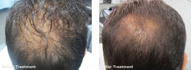 Mesotherapy for Hair Regrowth 2