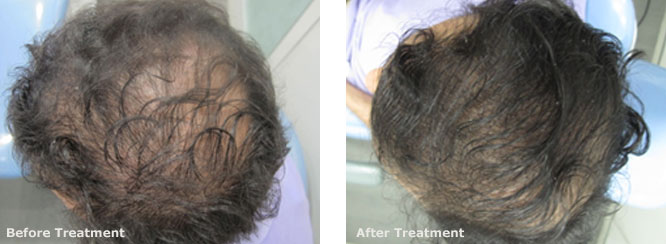 Mesotherapy for Hair Regrowth 3