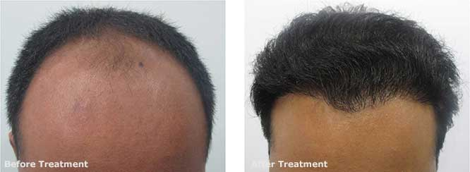 Hair Transplant in male pattern baldness