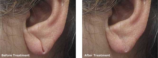 Single Earlobe Repair