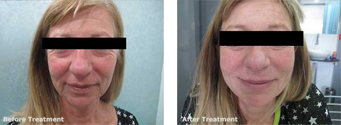 Face Lift with Exilis