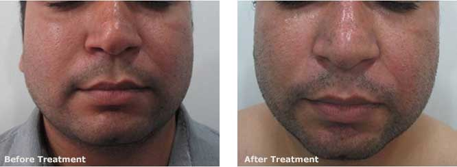 Non-surgical Face lift at Aura Skin Institute Chandigarh India