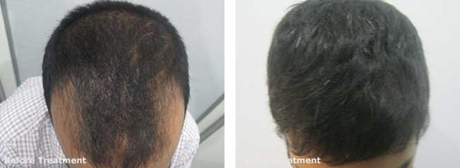 2500 Graft Hair Transplant