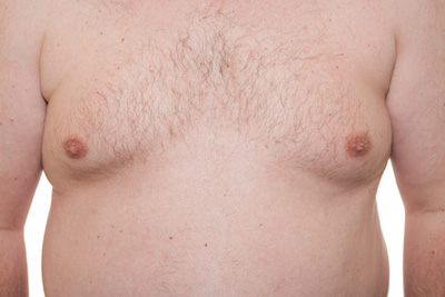 Male Chest Fat