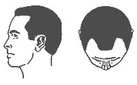 Hair-Loss Male-Pattern Type 2