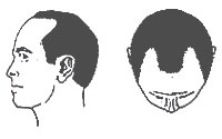 Hair-Loss Male-Pattern Type 3