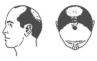 Hair-Loss Male-Pattern Type 5