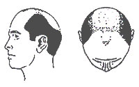 Hair-Loss Male-Pattern Type 6