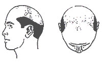 Hair-Loss Male-Pattern Type 7
